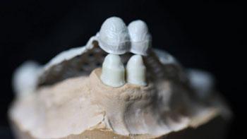 nuevos-materiales-fresado-protesis