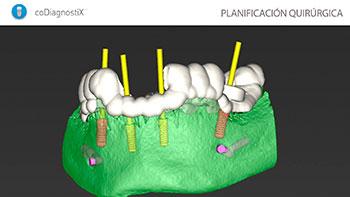 planificacion-quirurgica