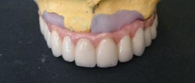 implantosoportada-B2