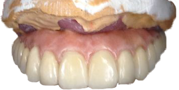 implantosoportada