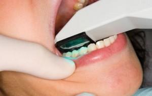escaneo-dental