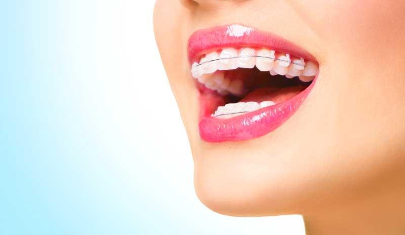 Ortodoncia-edad-adulta