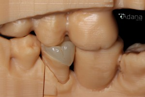 Prótesis Adana Dental