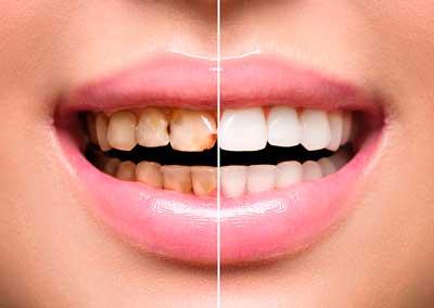 fobia-dentista
