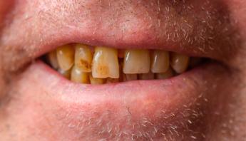 dientes_amarillos_protesis_dentales_adana_dental